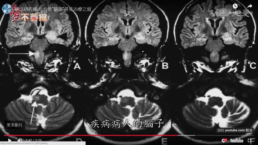 小腦萎縮症發病者的腦部